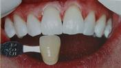 Kor-whitening-After-Image