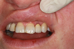 Implant-with-porcelain-crown-After-Image