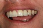 Dental-Implant-restoration-After-Image