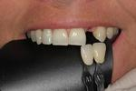 Dental-Implant-restoration-Before-Image
