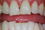 Tooth-colored-fillings-Before-Image